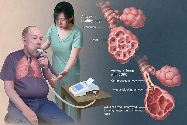 Elderly gentleman doing spirometry test,insets compare normal alveoli and bronchiole with COPD bronchiole and alveoli.