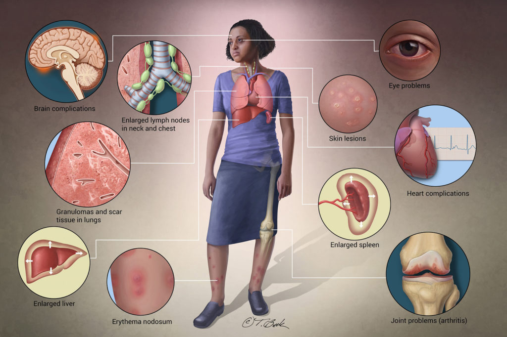 Medical Illustration depicting symptoms of Sarcoidosis
