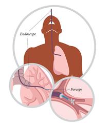 Bronchoscopy image