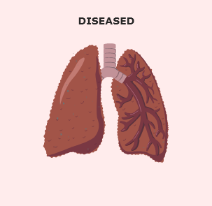 Unhealthy lung image 1